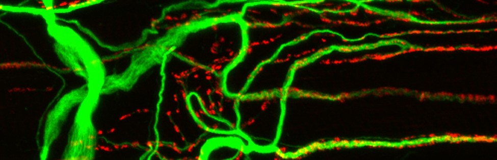 Developing frog neuromuscular junctions