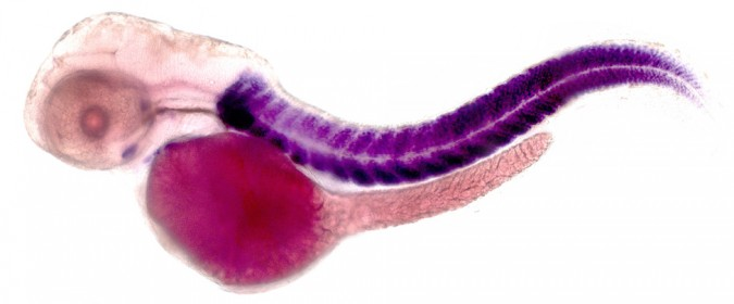 Zebrafish embryo stained by in situ hybridization